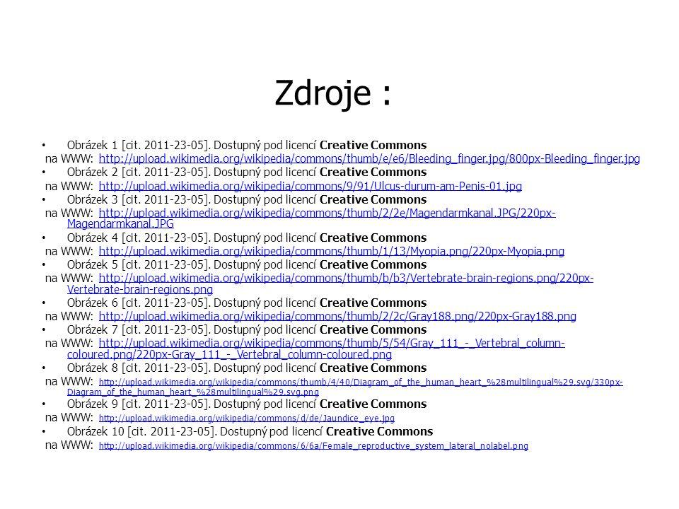 Zdroje : Obrázek 1 [cit. 2011-23-05]. Dostupný pod licencí Creative Commons.